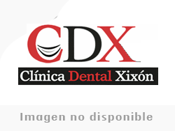Clinica Dental Xixon - Revisiones e incidencia -  Clínica Xixón Dental